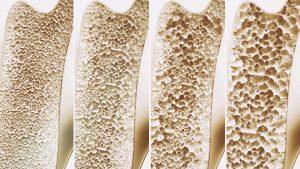 Osteoporose Ursachen